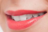 歯並びの治療・矯正治療のイメージ