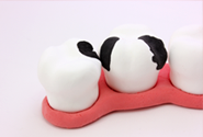 虫歯治療のイメージ