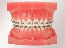 虫歯が深い場合